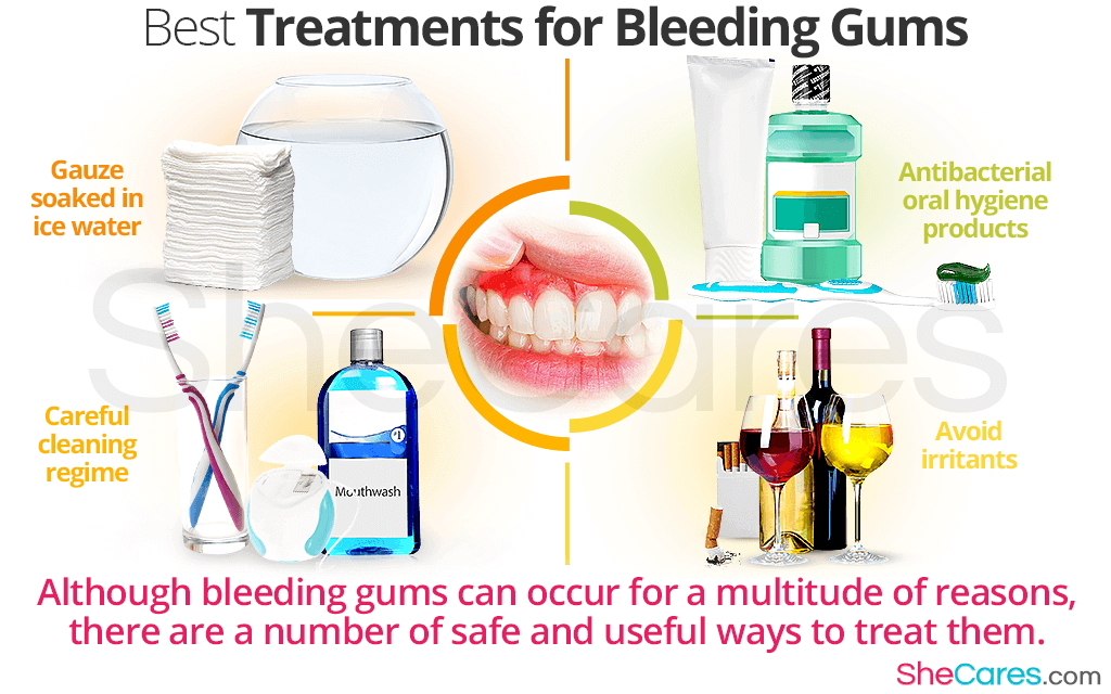Best Treatments for Bleeding Gums