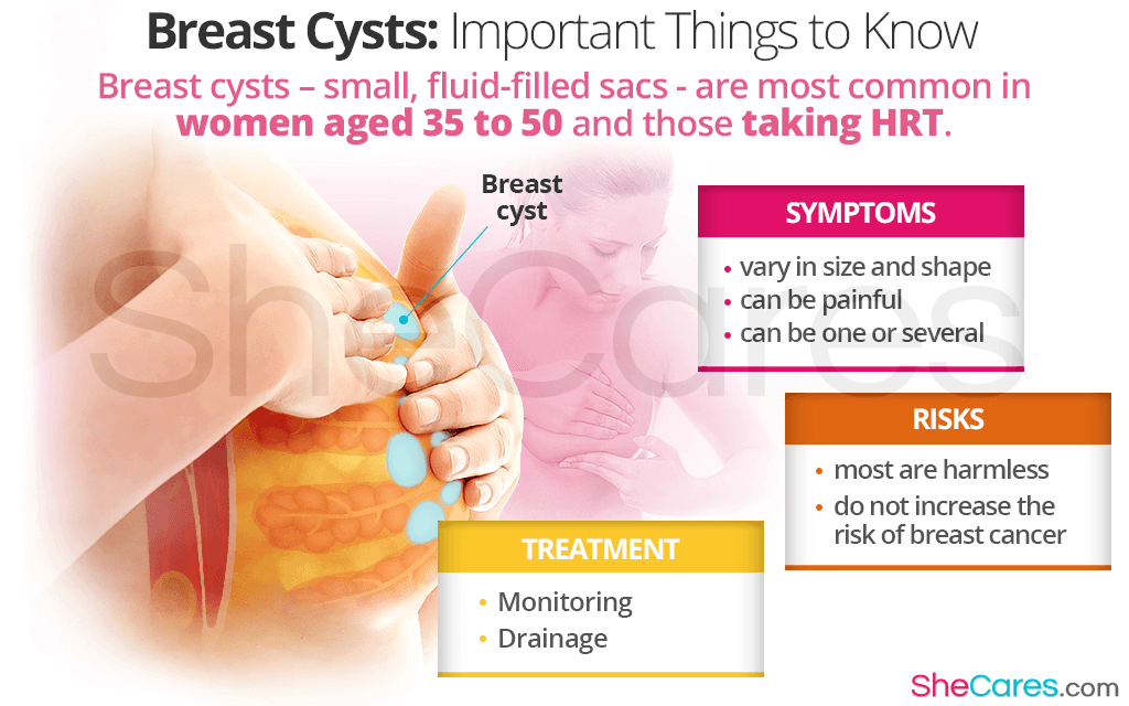 A breast cyst rarely means cancer; however, it is important to consult a doctor.