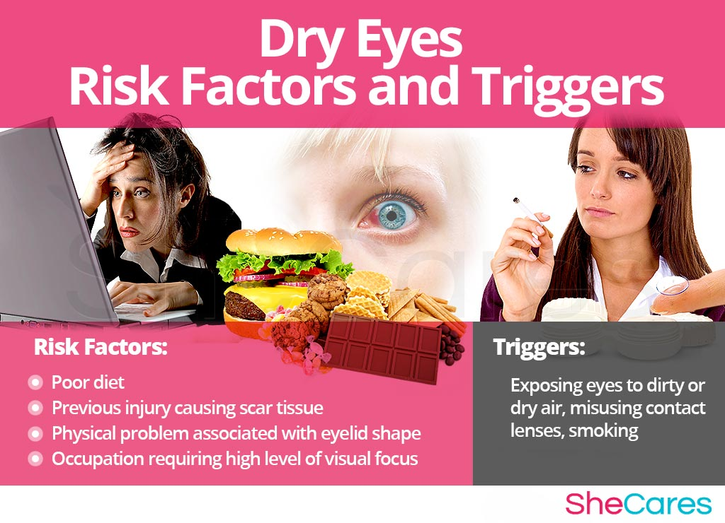 Dry Eyes - Risk Factors and Triggers