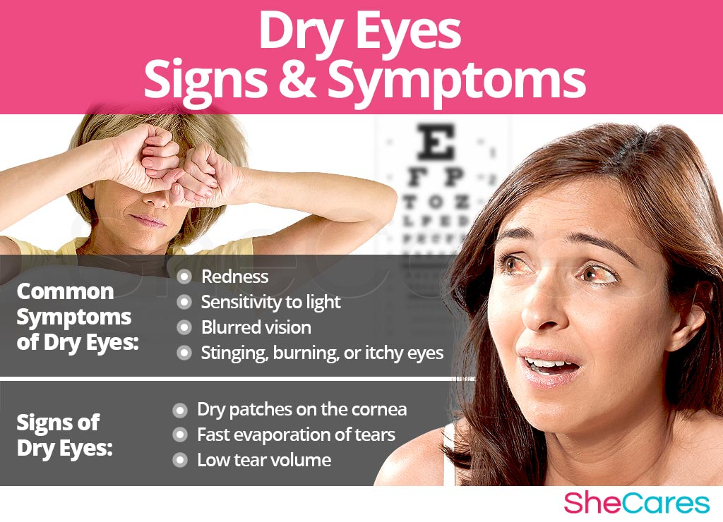 Dry Eyes - Signs and Symptoms