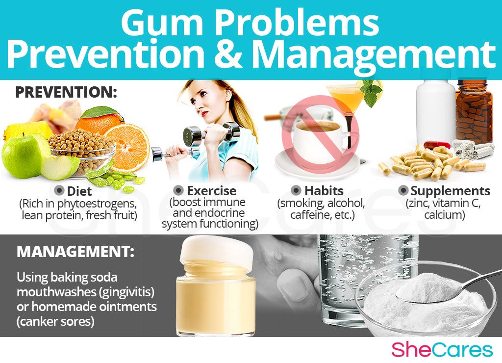 Gum Problems - Prevention and Management