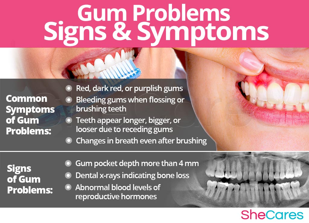 Gum Problems - Signs and Symptoms
