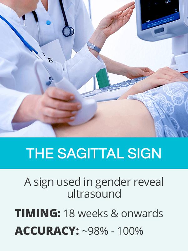 sagittal sign for gender reveal