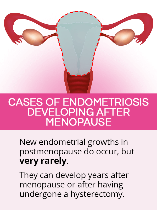 Cases of endometriosis developing after menopause