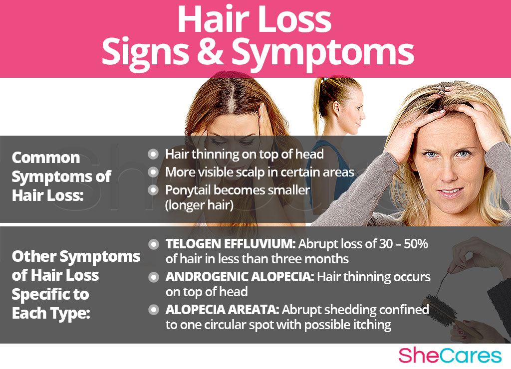 Hair Loss - Signs and Symptoms