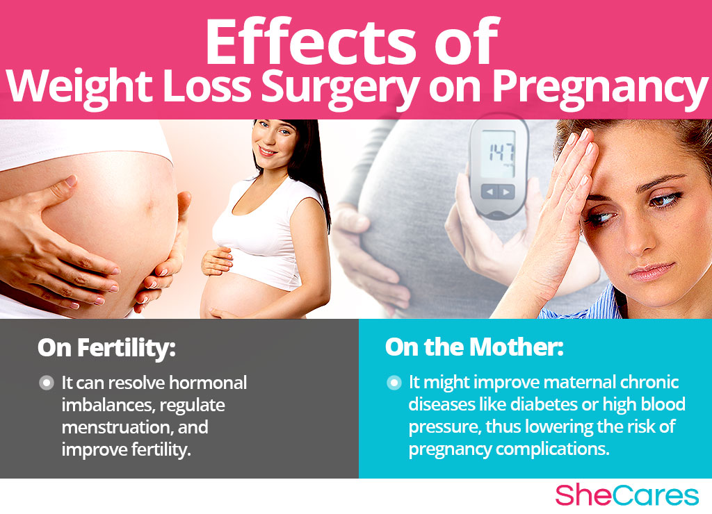 Effects of Weight Loss Surgery on Getting Pregnancy