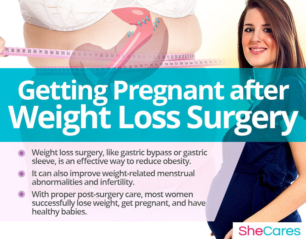 Getting Pregnant after Weight Loss Surgery
