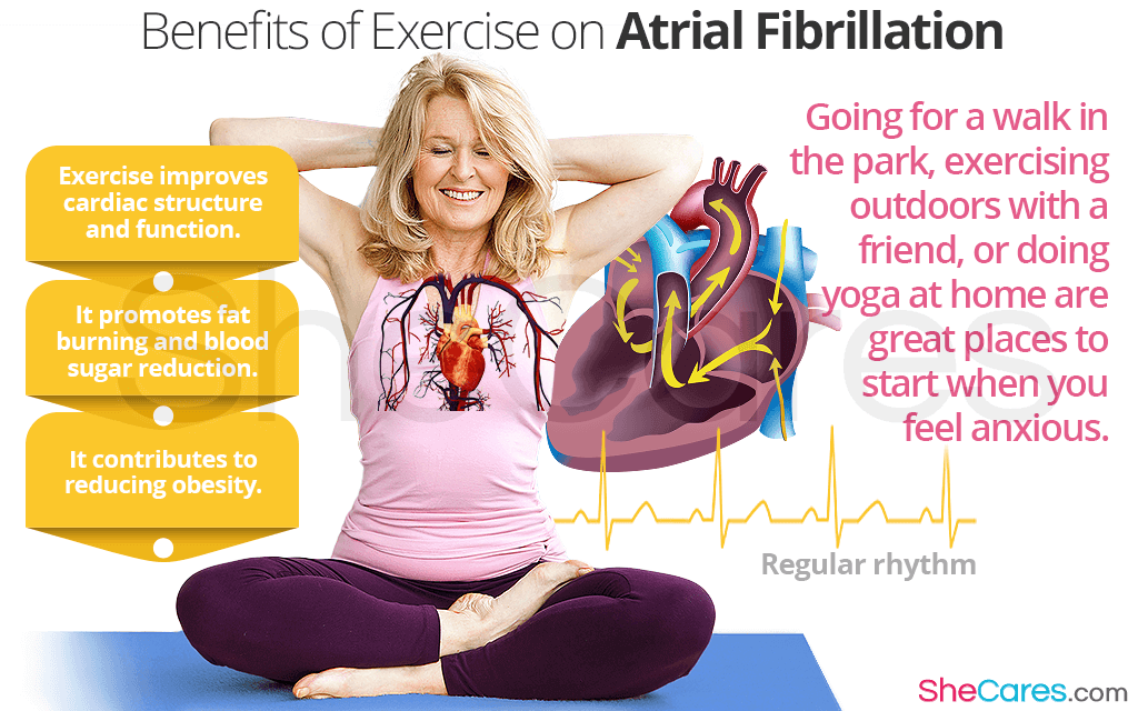 Atrial Fibrillation and Exercise: Important Things to Know