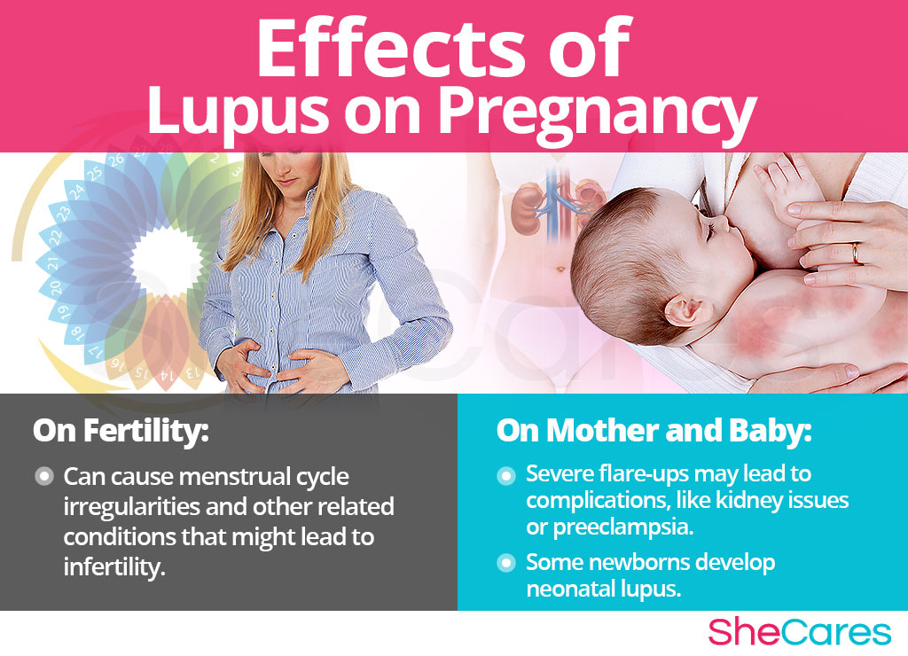Effects of Lupus on Conception