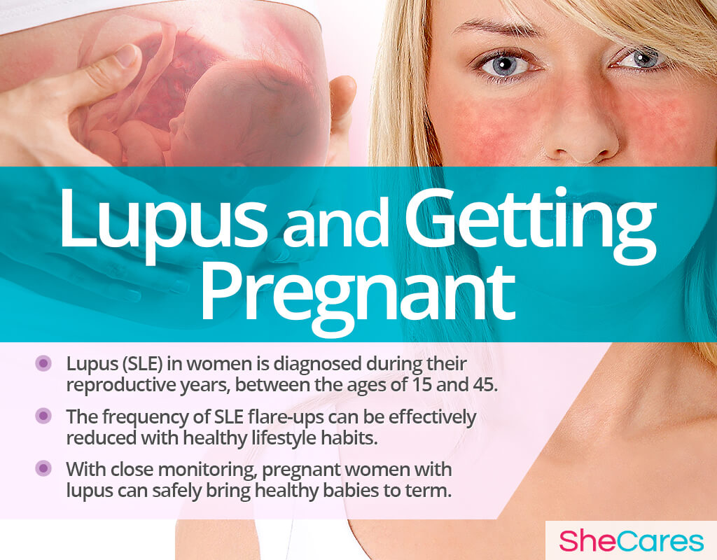 Lupus and Getting Pregnant