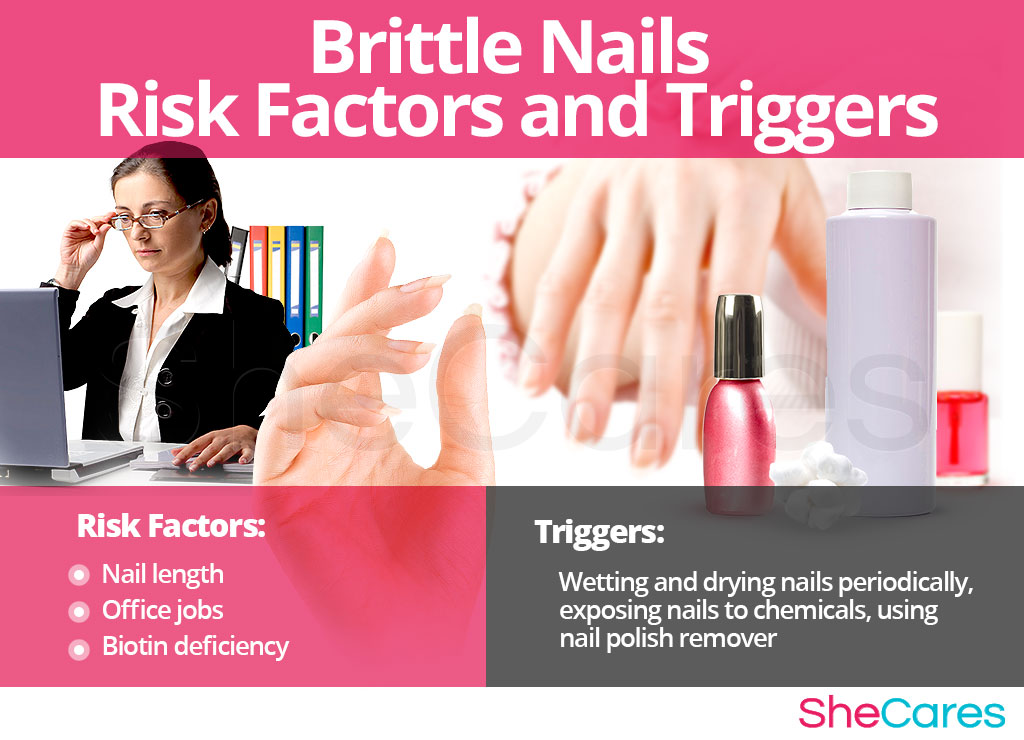 Brittle Nails - Risk Factors and Triggers