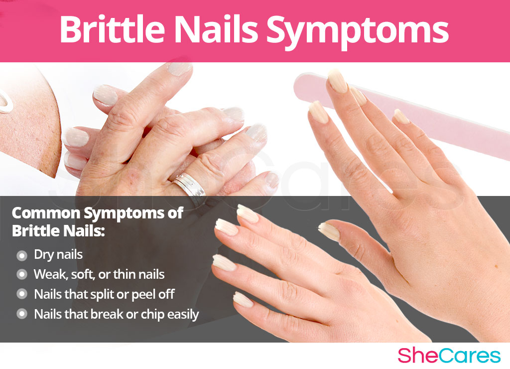 Brittle Nails - Signs and Symptoms