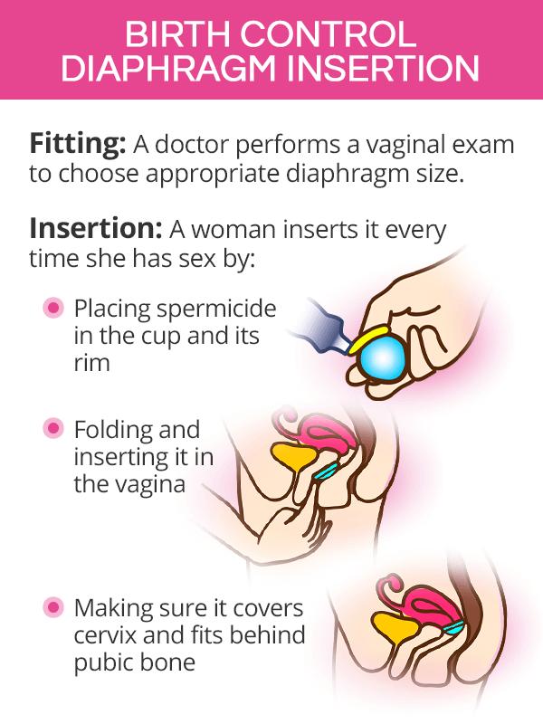 Birth control diaphragm insertion