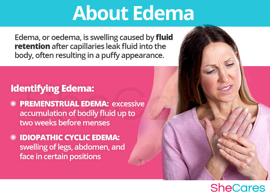 About Edema