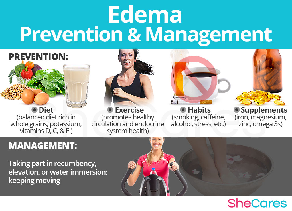 Edema - Prevention and Management