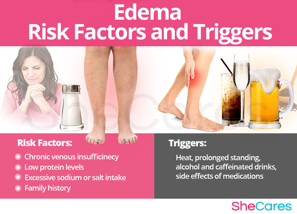 Edema - Risk Factors and Triggers