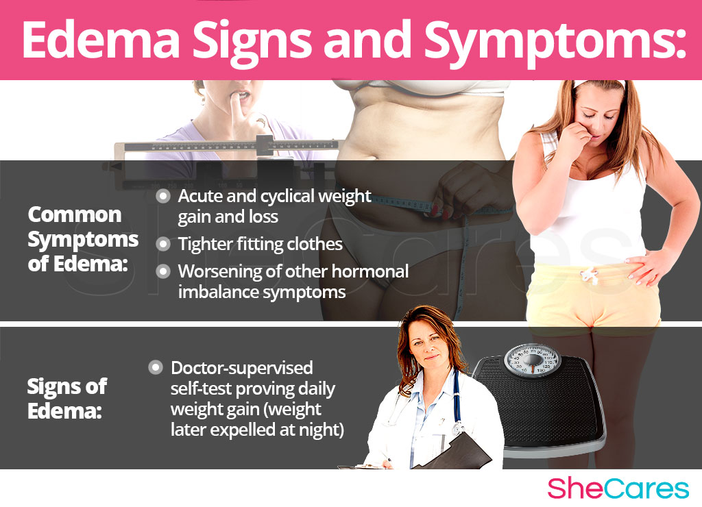 Edema - Signs and Symptoms