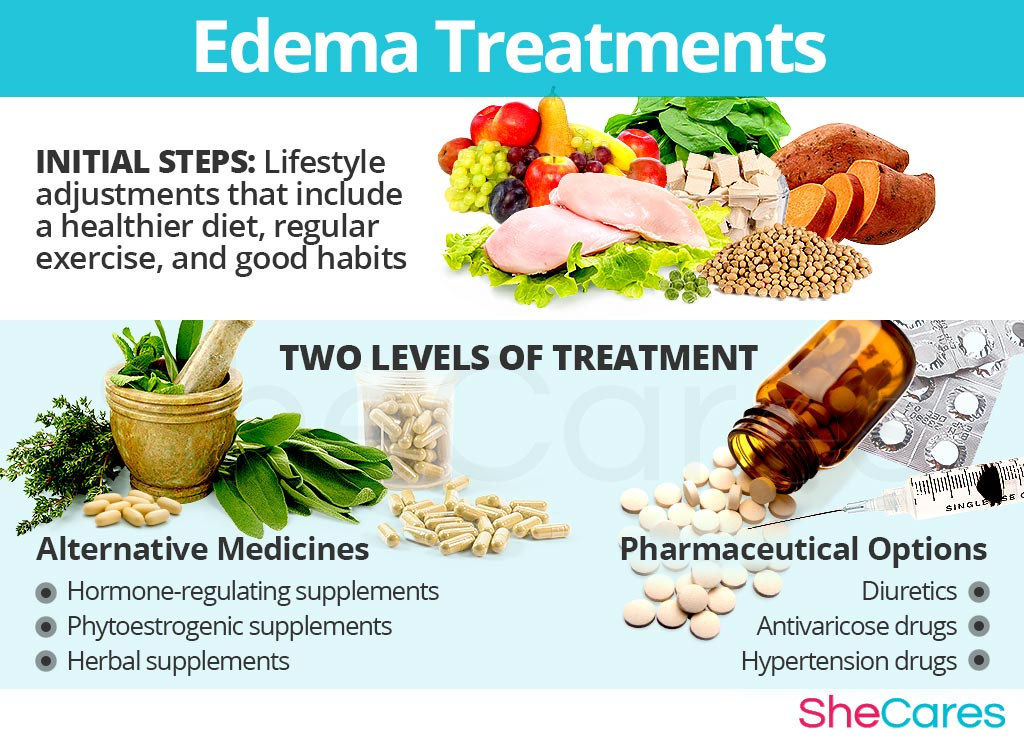 Edema Treatments
