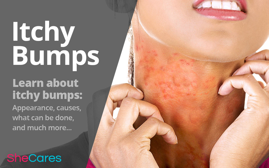 All about Itchy Bumps