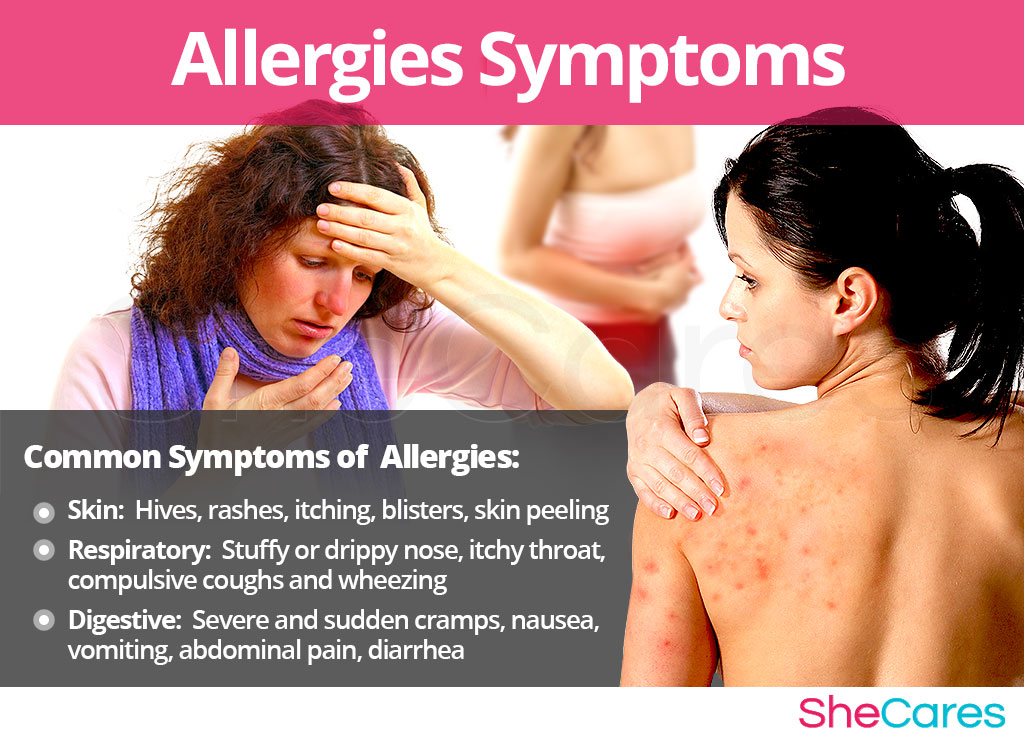 Allergies - Signs and Symptoms