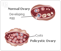 High Hormone Levels can cause polycystic ovary syndrome.