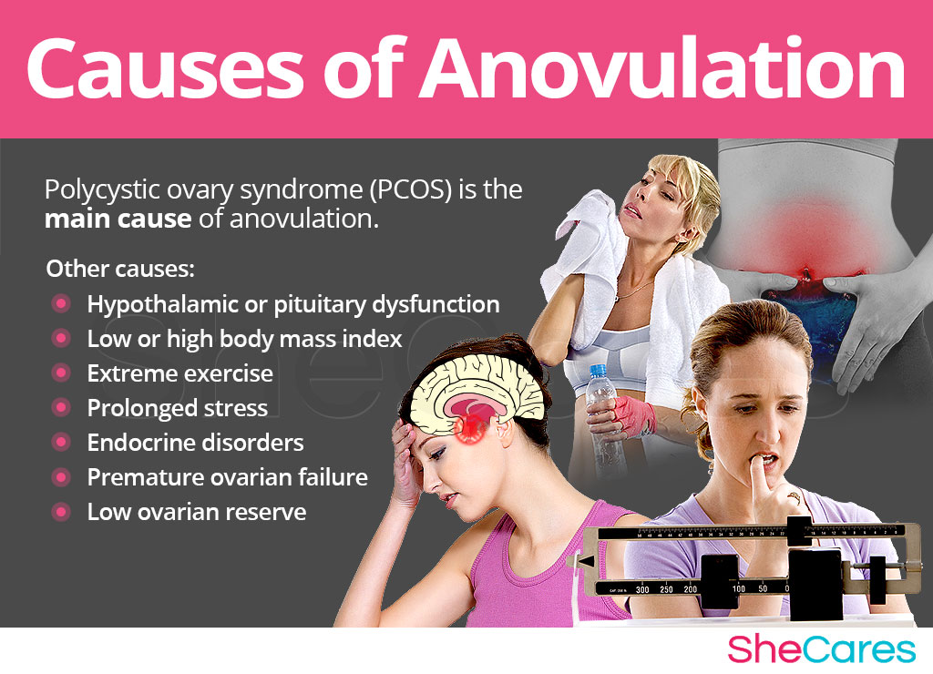 Anovulation causes
