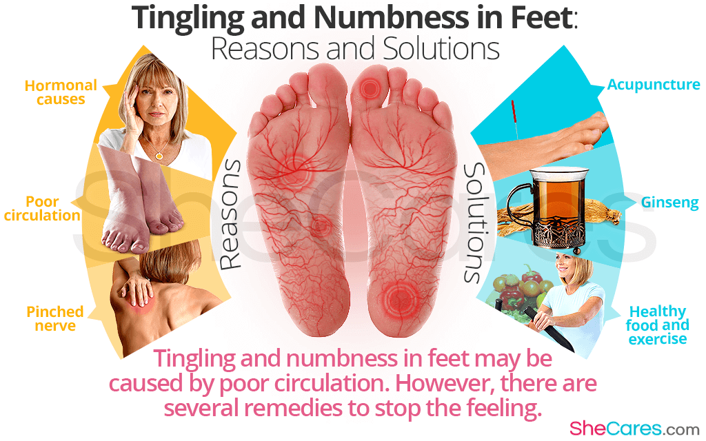 Tingling And Numbness In Feet Reasons And Solutions Shecares