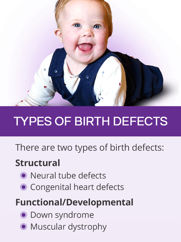 Types of birth defects