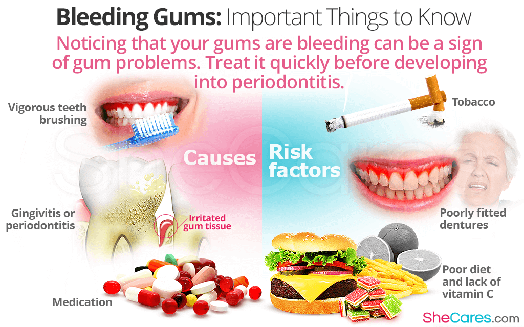 Noticing that your gums are bleeding can be a sign of gum problems.