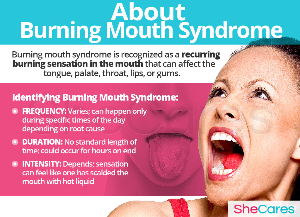 About Burning Mouth Syndrome