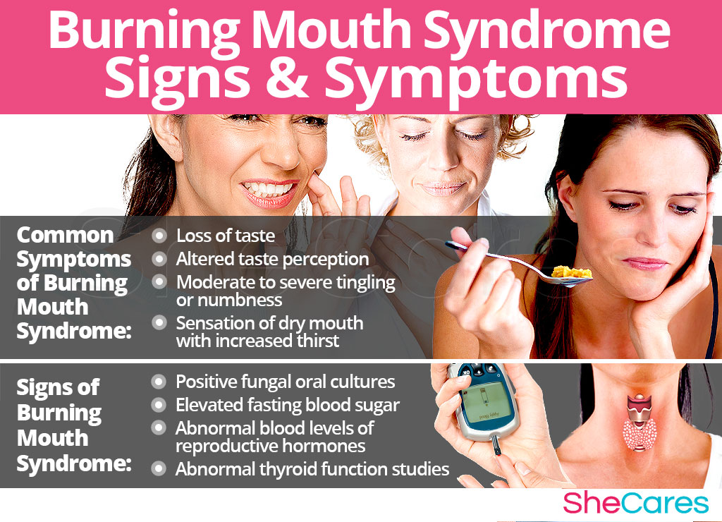 Burning Mouth Syndrome - Signs and Symptoms