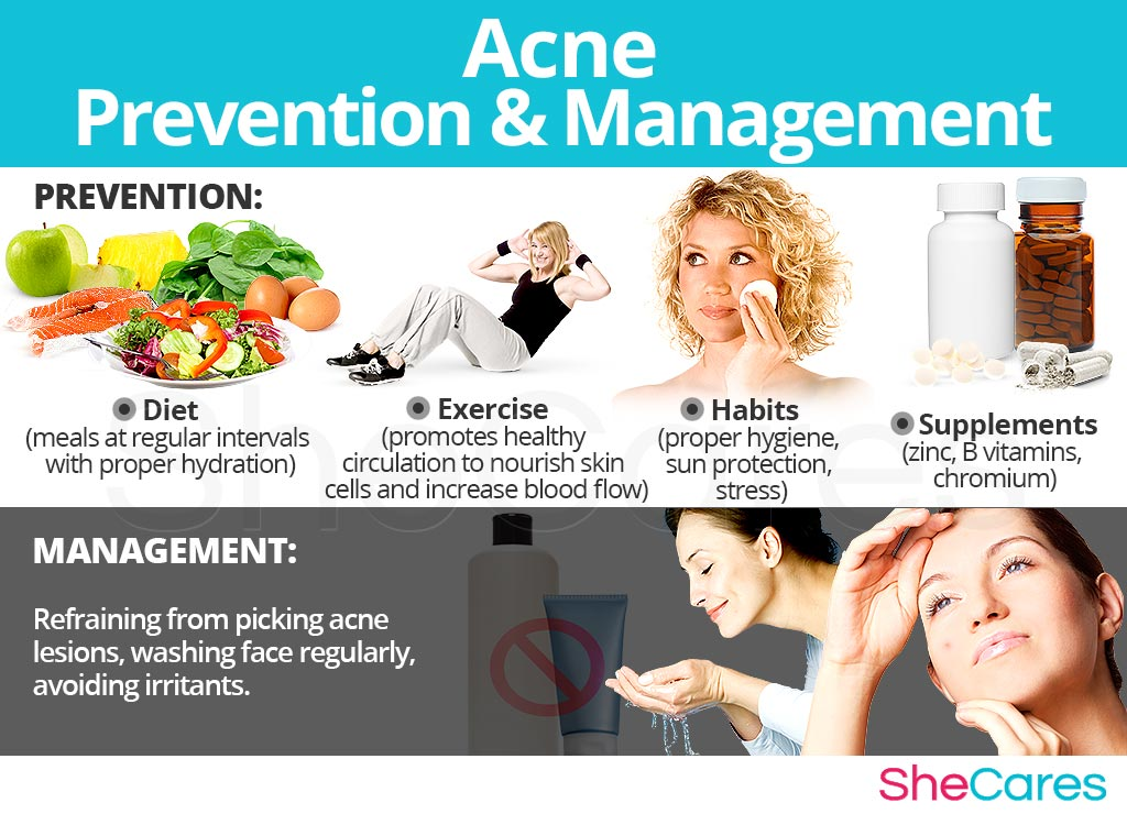 Acne - Prevention and Management
