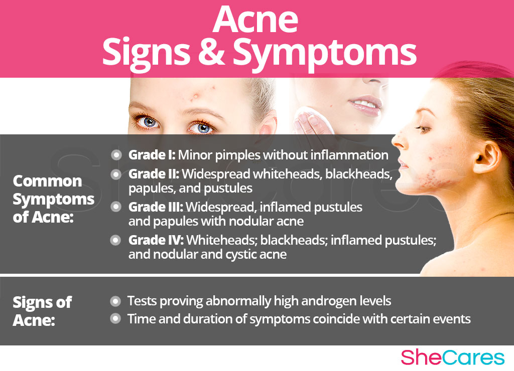 Acne - Signs and Symptoms