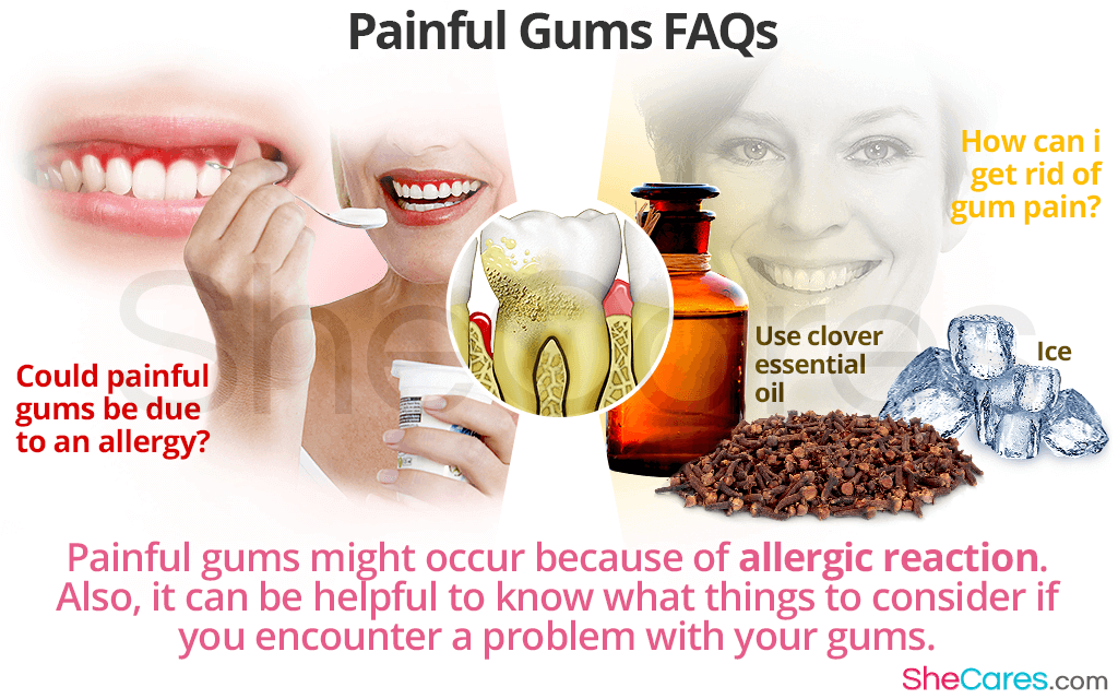 Painful Gums FAQs
