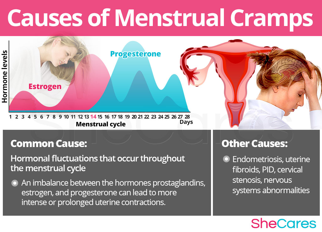 Causes of Menstrual Cramps