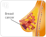 HRT has a higher risk of developing breast cancer and other diseases