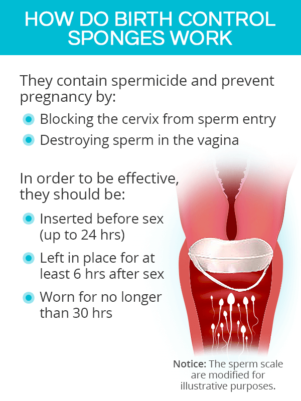 How do birth control sponges work