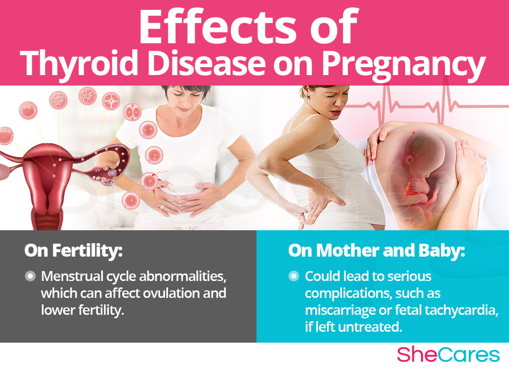Thyroid Disease and Getting Pregnant   SheCares