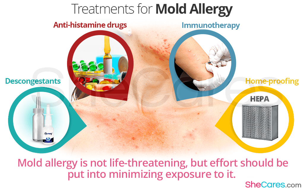 Treatments for Mold Allergy