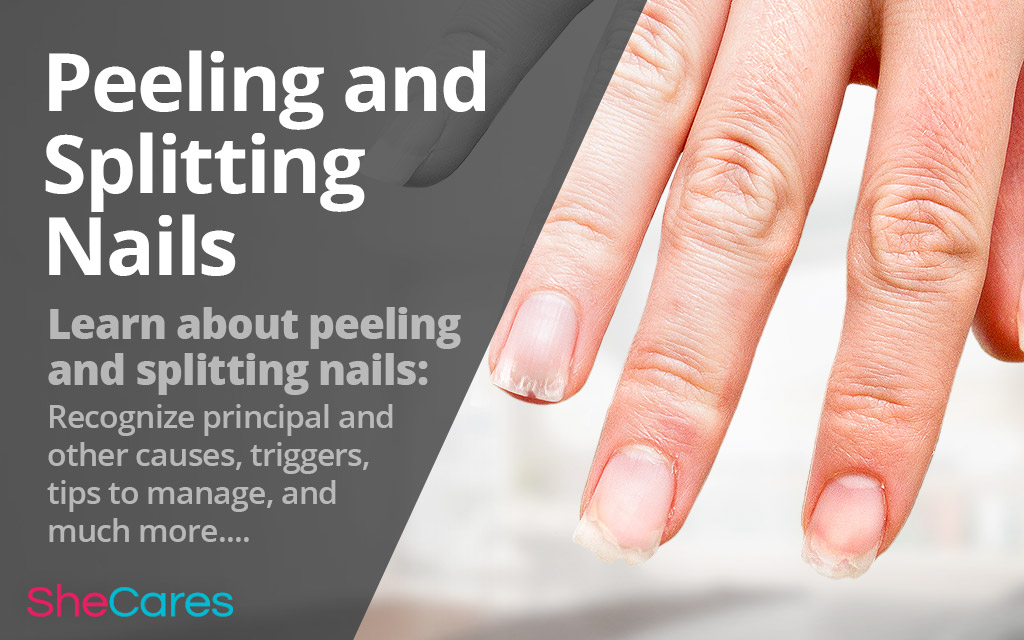 Splitting and Peeling Nails