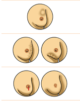 signs symptoms breast cancer