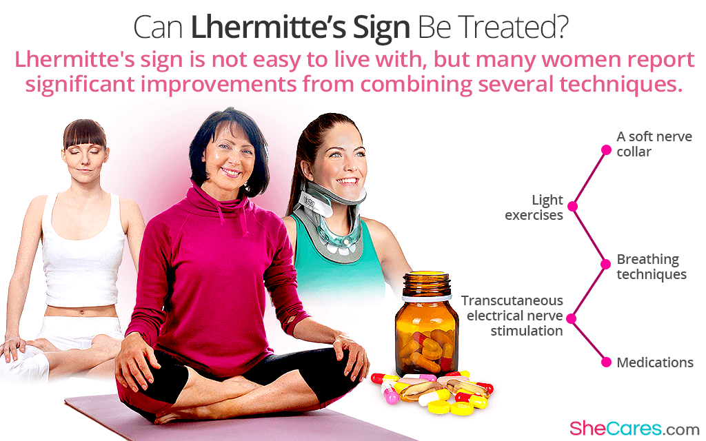 Can Lhermitte's Sign Be Treated