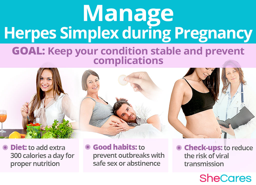 Manage Herpes Simplex during Pregnancy