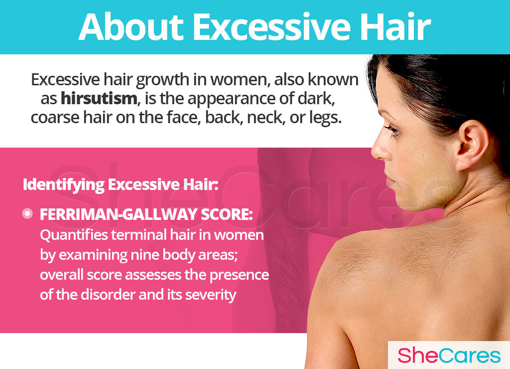 About Excessive Hair
