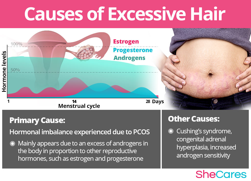 Causes of Excessive Hair