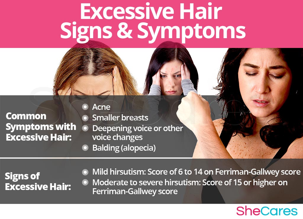 Excessive Hair - Signs and Symptoms
