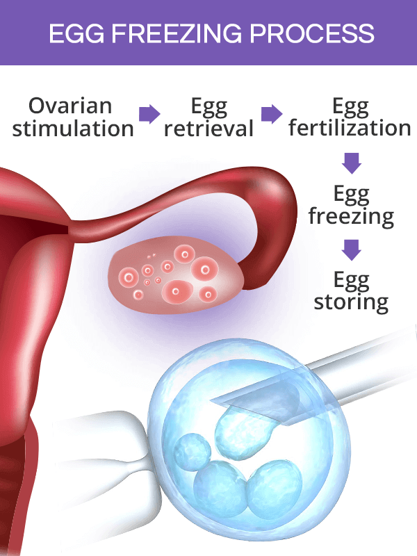 Egg freezing process