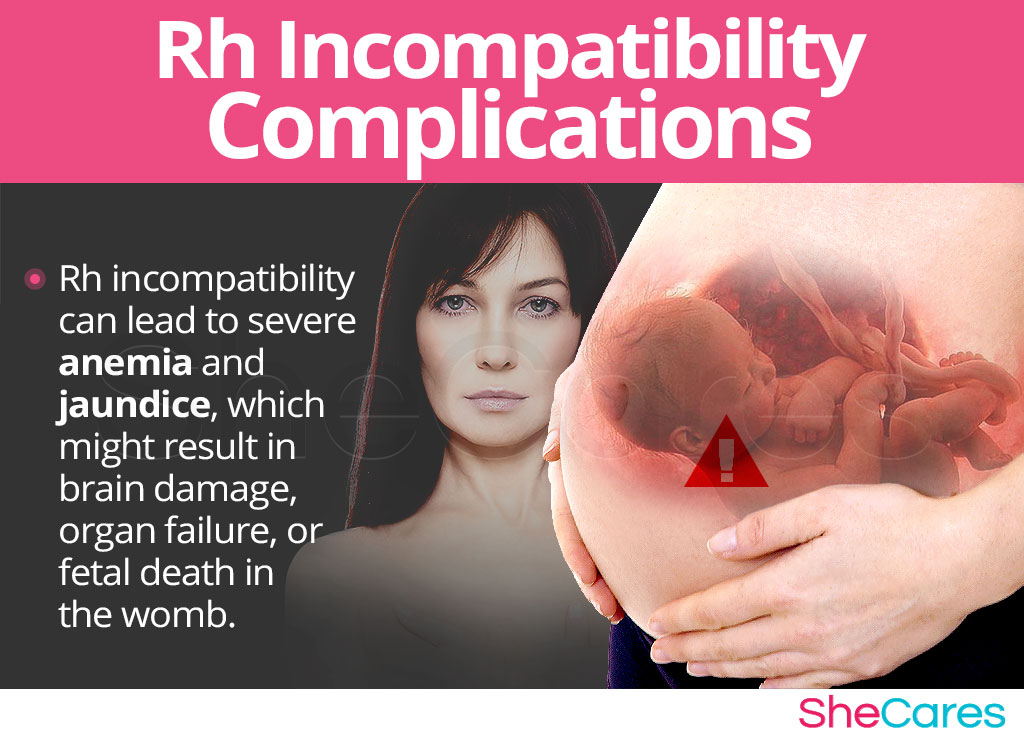 Rh Incompatibility Complications