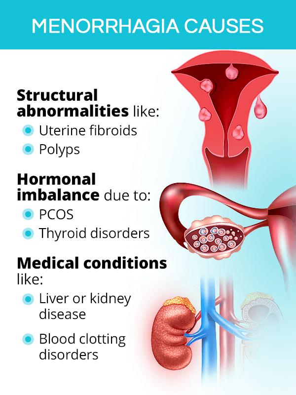 Menorrhagia causes
