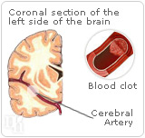PRT has been reported to raise a woman´s chance of developing blood clots.